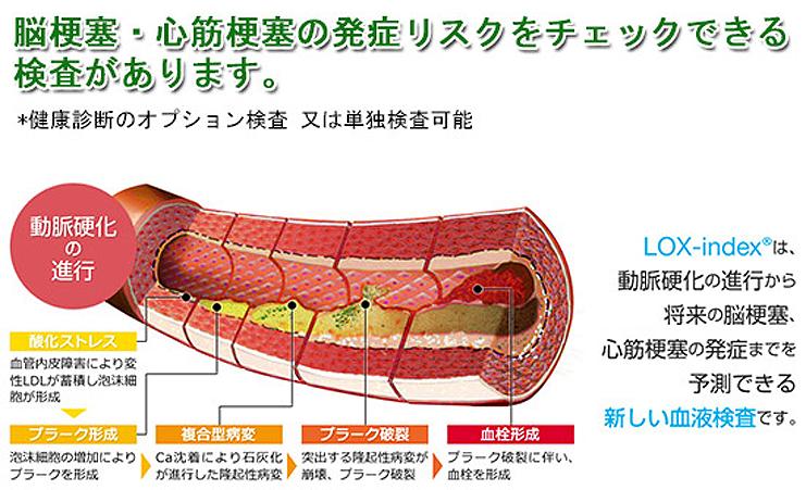 人間は血管と共に老いる